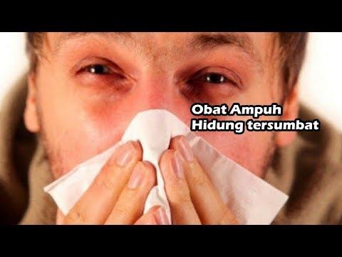 9-cara-mudah-mengatasi-hidung-tersumbat-tanpa-obat