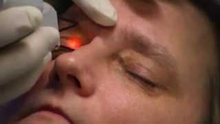Xanthelasma laser treatment