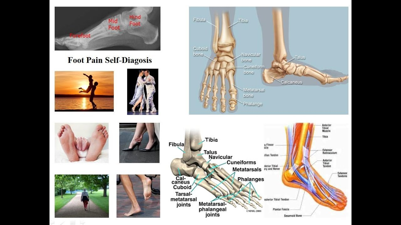 Self-Diagnosis of Foot Pain and Disorders - YouTube