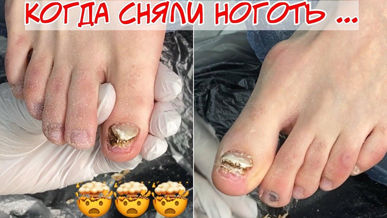 Онихолизис на ногах, отслоение ногтей на пальцах 😱 Почему пришлось снять ногти? 😵 nail vlog