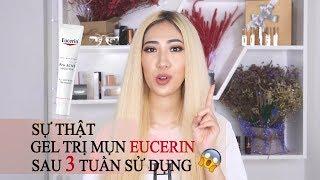 Sự Thật Sau 3 Tuần Trải Nghiệm Kem Trị Mụn Eucerin [ Vanmiu Beauty ]