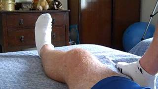 acl reconstruction recovery 2 weeks after surgery