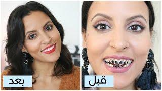 كيف تحصلي على ابتسامة هوليودية | ٩ نصائح لتبييض الأسنان في دقائق