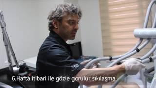 Ameliyatsız Lazer Lipoliz SculpSure
