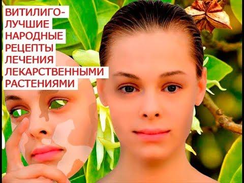 Витилиго лучшие народные рецепты лечения лекарственными растениями