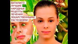 видео Витилиго: лечение методами народной медицины