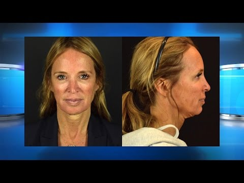 Could a Micro Neck Lift Be Right for You?