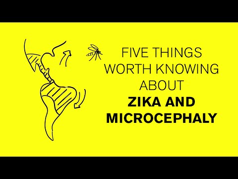 Five things worth knowing about the Zika virus, microcephaly, and risk