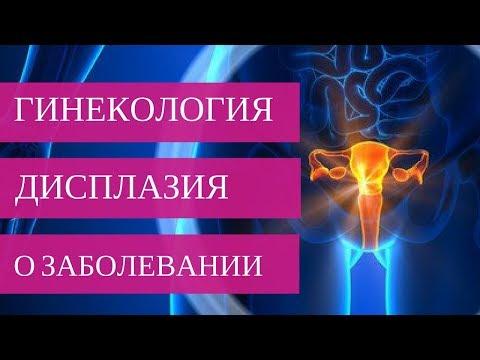 ДИСПЛАЗИЯ ШЕЙКИ МАТКИ - о заболевании | Добрый Прогноз