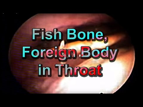 Interesting Foreign Bodies (Fish Bone) In The Throat/ Neck