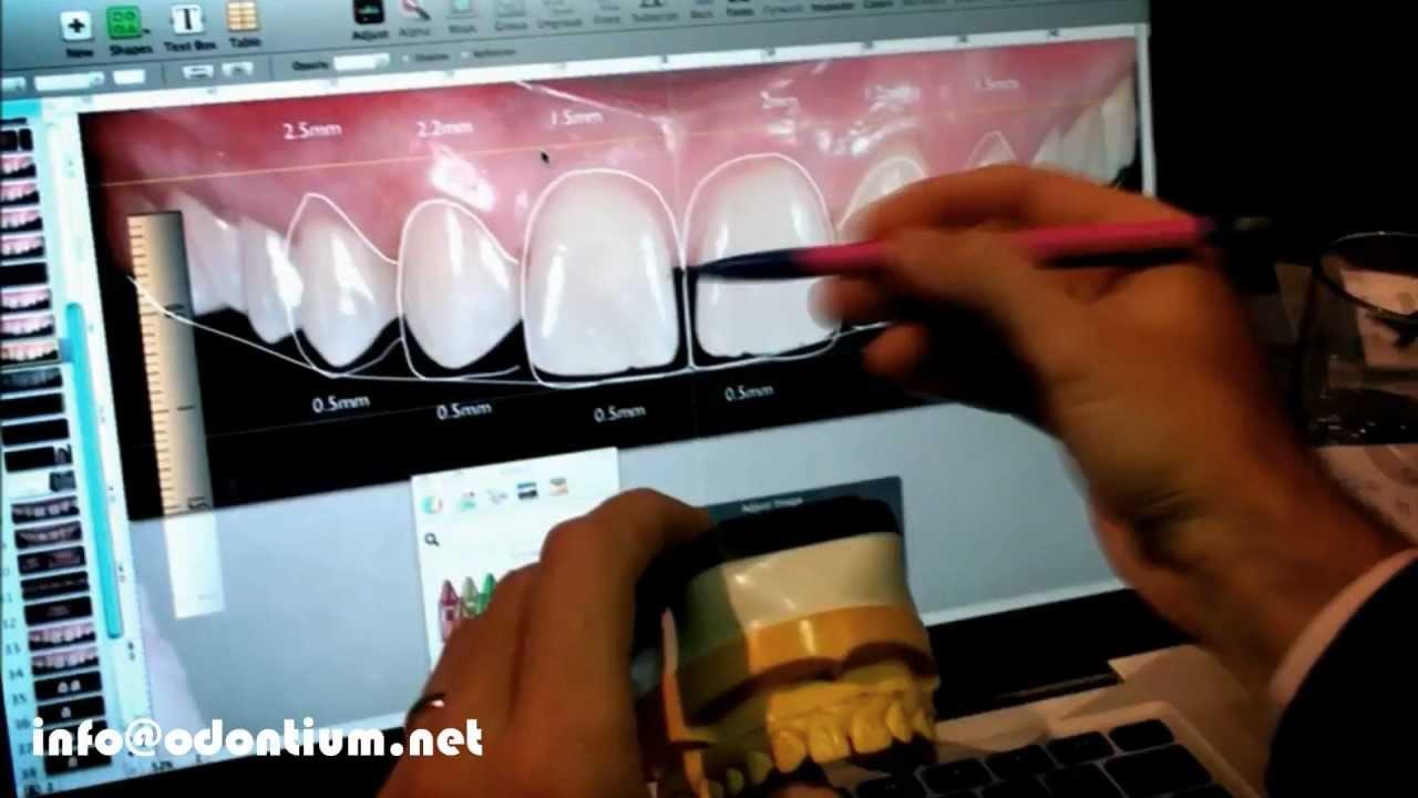 Curso Intensivo Digital Smile Design Dsd Dr Christian Coachman Youtube