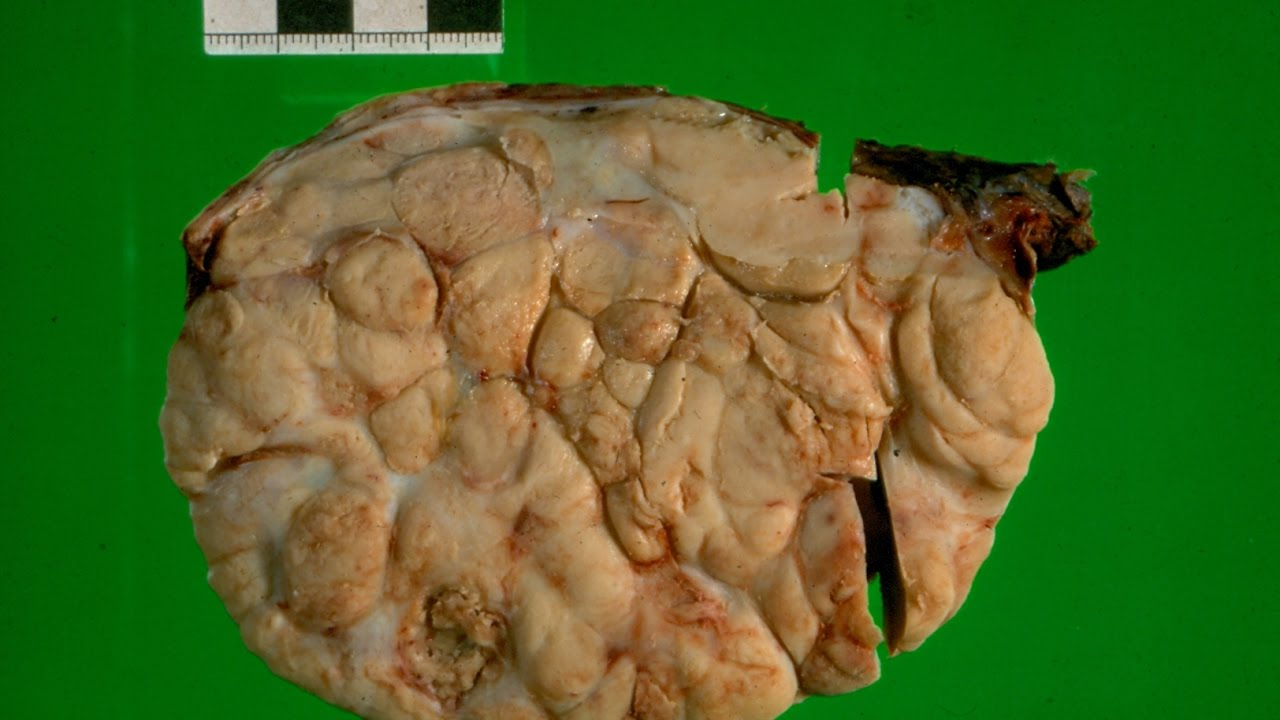 Thyroid neoplasms pathology mini tutorial youtube.