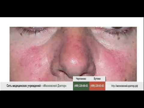Аллергия на носу