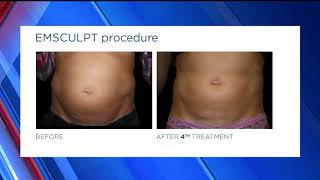 Nowak Aesthetics: Fox 5 San Diego - Introducing The EMSCULPT
