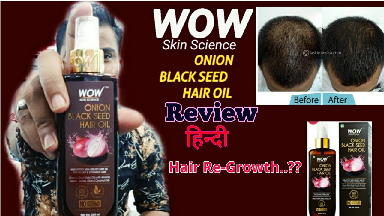 Wow Onion oil review demo| Onion oil benefits|Hair regrowth| Wow skin science onion oil amazing