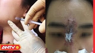Biến dạng mặt, suýt mù mắt vì tiêm phải filler bẩn tại thẩm mĩ viện   Điều tra   ANTV