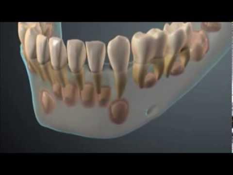 Denticao Decidua E Permanente Youtube