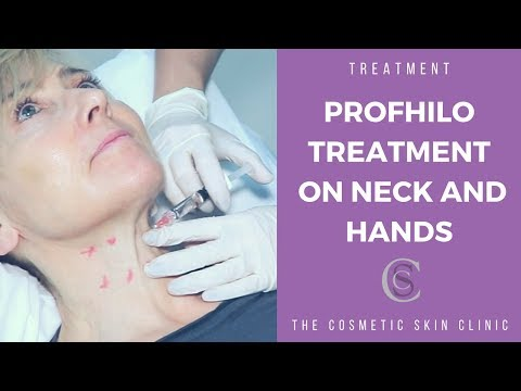 Profhilo Treatment On Neck and Hands | The Cosmetic Skin
