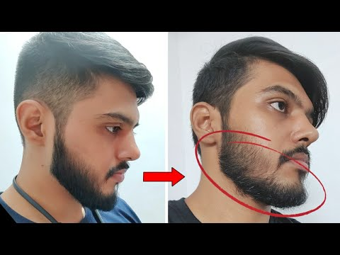 i-stopped-using-minoxidil-for-2-months-!!-and-this-is-what-happened.......🇮🇳