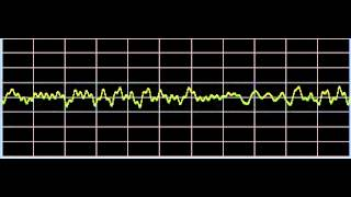 Epstein-Barr - Rife Frequencies