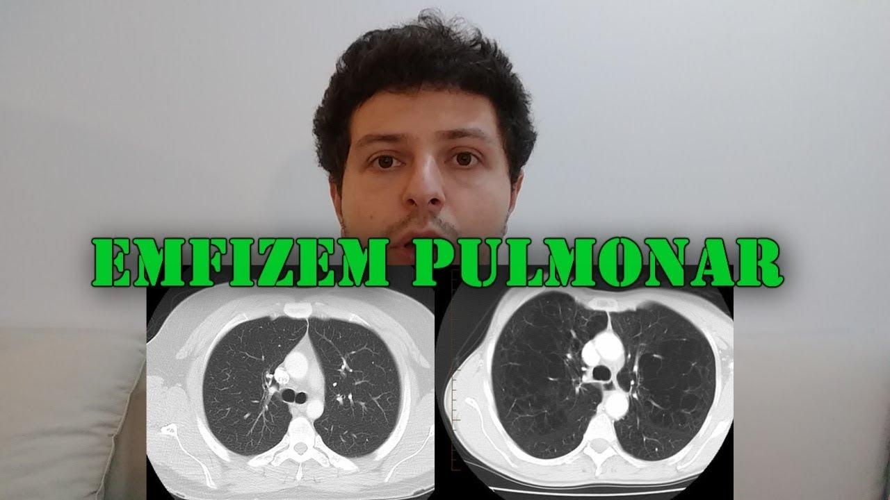 Scădere în greutate din cauza emfizemului, Emfizem pulmonar