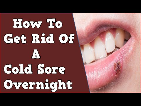 How to get rid of a cold sore overnight cold sore how to stop how to get rid of a cold sore overnight cold sore how to stop cold sores cold sore lip ccuart Images