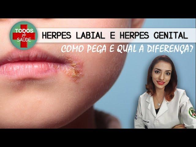 HERPES LABIAL E GENITAL - Como pega e qual a diferença?