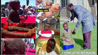 [UPDATED] BABY SHALIN - THE SHOCKING HEALING OF LEPROSY - PROPHET DR. OWUOR