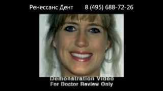 Виниры на зубы(Виниры на зубы http://www.rdent.ru/p2/03.php Стоматологическая клиника Ренессанс Дент http://www.rdent.ru/ АКЦИИ И СКИДКИ: http://ww..., 2012-10-04T19:03:07.000Z)
