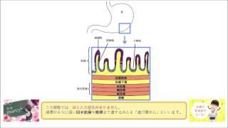 胃粘膜下層までのがんを 早期胃がんという。 (○or×)