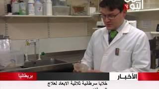 خلايا سرطانية ثلاثية الابعاد لعلاج السرطان