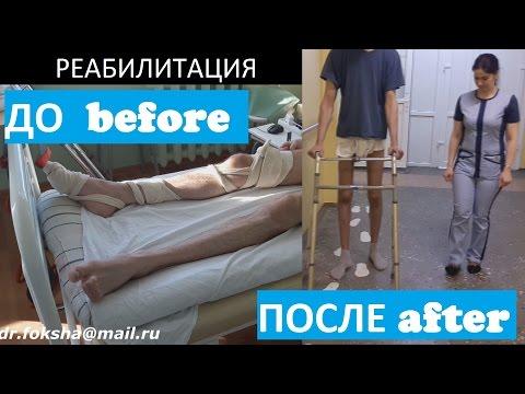 Перелом — КиноПоиск -
