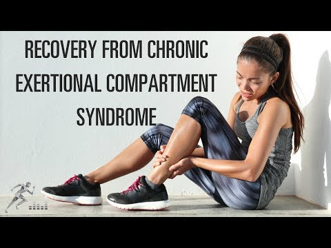 Recovery From Chronic Exertional Compartment Syndrome (CECS)