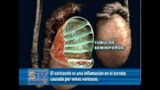 Unilateral varicocele derecho