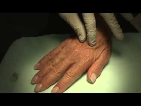 LASER And MOHS: Radiesse For Hand Rejuvenation