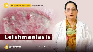 Leishmaniasis | Infectious Clinical Medicine Video | V-Learning | sqadia.com