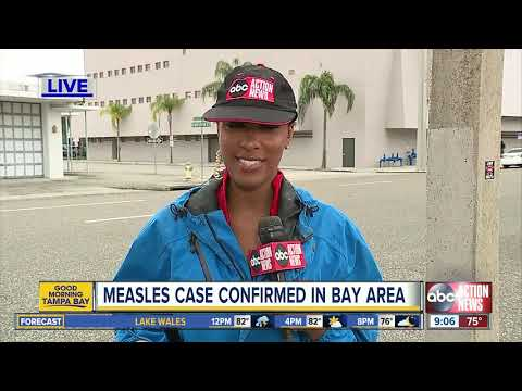 Measles case confirmed in Pinellas County, one of two cases in Florida