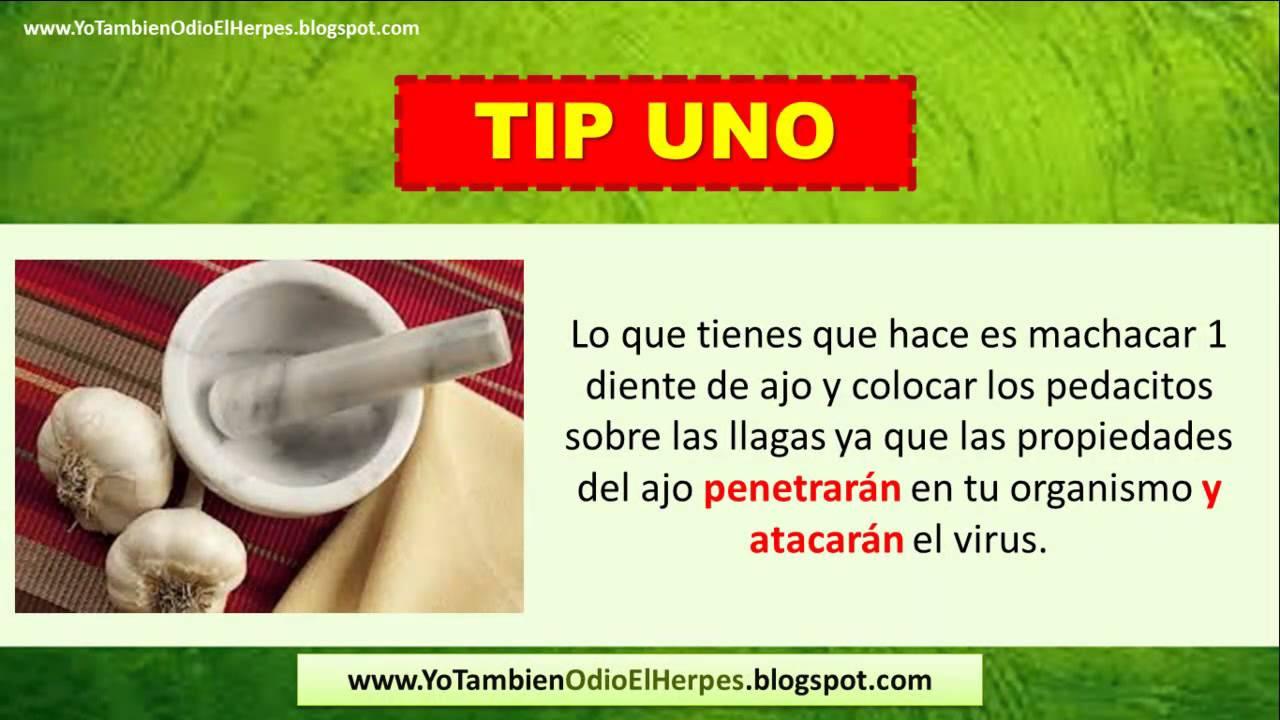 Como Curar Un Herpes Labial Como Eliminar El Herpes Labial Youtube