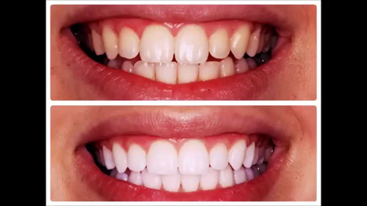 Superior Homemade Teeth Whitening   Peroxide Teeth Whitening   YouTube Home Design Ideas