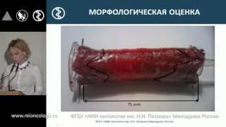 Эндоскопическое лечение раннего рака пищевода. Армашева М.В.