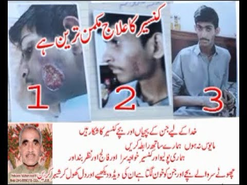 Polio and disabl cancer ka treatment free ka jata ha patient well r good