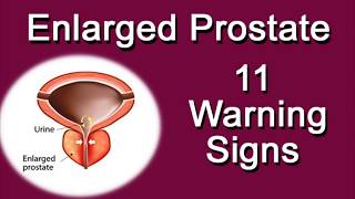 enlarged prostate 11 warning signs
