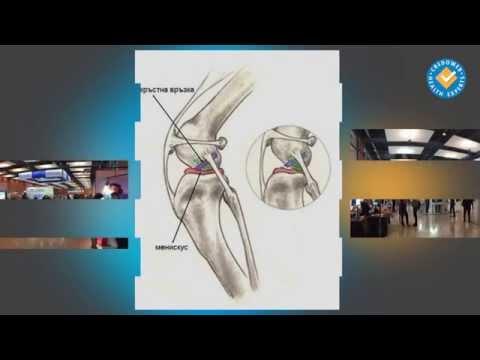 Травмите на коленните връзки - оперативно лечение