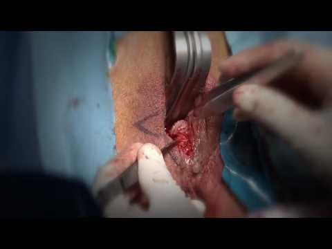 Интимная пластика половые губы операция