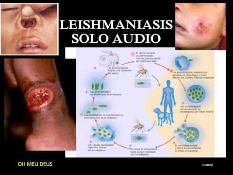 LEISHMANIASIS N°1  (escucha y aprende)