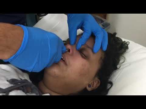 Nasal Fracture Closed Reduction