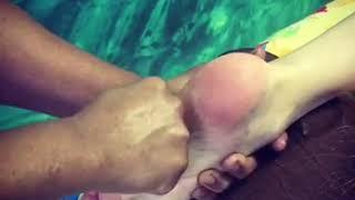 Пример массажа ступней, медицинский массаж ступней