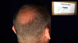Sexual Problems Sometimes Irreversible Side Effect of Hair Loss Drug Propecia