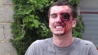 Missing Eye SCARE PRANK