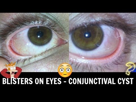 Blisters On The Eyeball Conjunctival Cyst